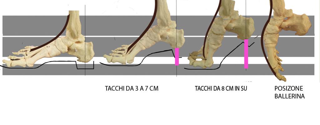 ossa del piede con tacchi